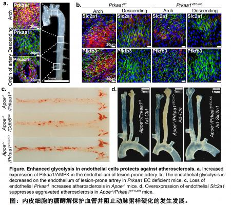 霍玉庆/洪梅课题组在血管细胞代谢调控心脑血管病发病机制方面取得重要进展