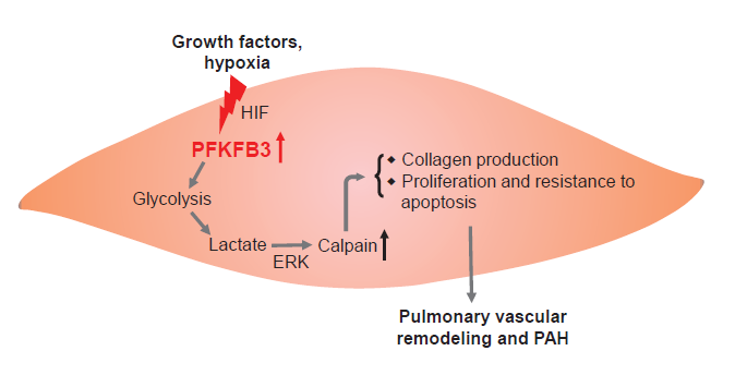 4166am备用炎症代谢课题组系列研究证明抑制PFKFB3介导的糖酵解防治多种严重肺疾病